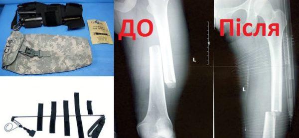 Тракційна шина CT-6 Traction Splint